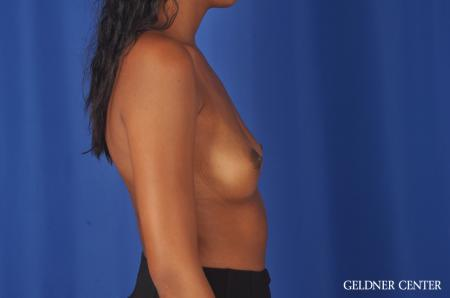 Chicago Breast Augmentation 11869 - Before Image 3