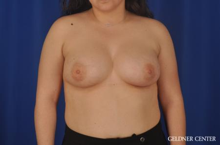 Breast Augmentation Hinsdale, Chicago 5466 -  After Image 1