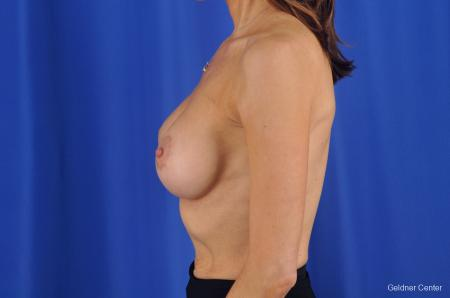 Breast Lift Chicago 2296 -  After Image 4