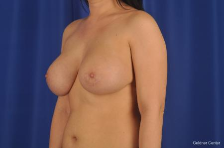 Chicago Complex Breast Augmentation 2288 -  After Image 4