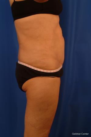 Vaser lipo patient 2536 before and after photos -  After Image 2