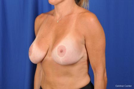 Complex Breast Augmentation Streeterville, Chicago 2392 -  After Image 4