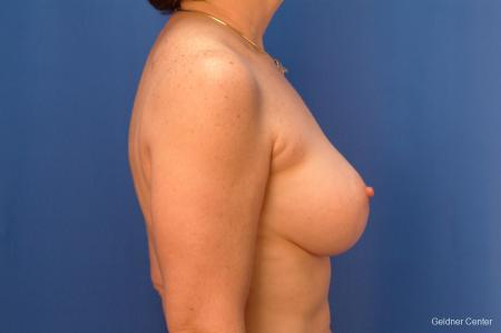 Breast Augmentation Hinsdale, Chicago 2541 -  After Image 2