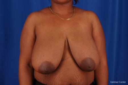 Breast Reduction Hinsdale, Chicago 2334 - Before Image