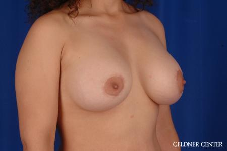 Breast Lift: Patient 28 - After Image 2