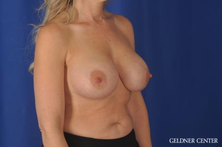Chicago Breast Augmentation 11970 -  After Image 3