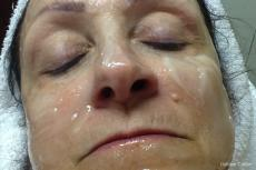 mole laser removal - Before Image