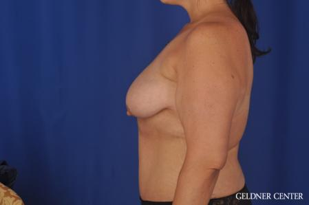 Breast Augmentation: Patient 161 - Before and After 4