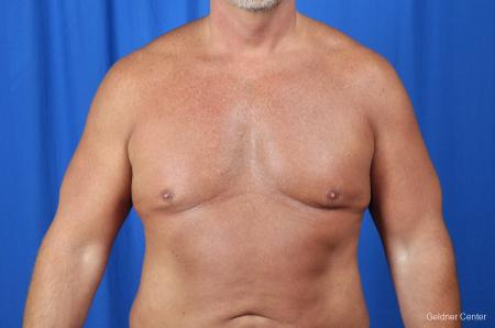 Gynecomastia: Patient 7 - Before Image 1
