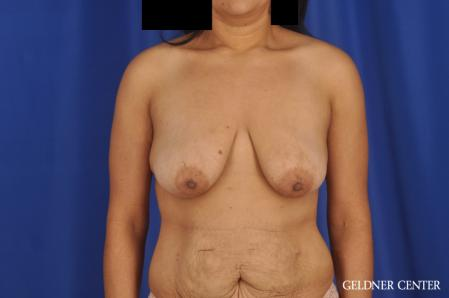 Breast Lift: Patient 49 - Before Image 1