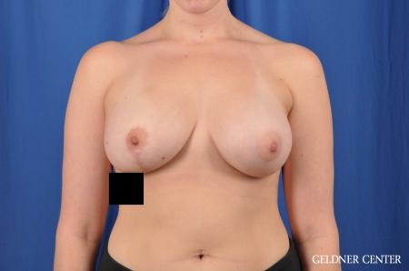 Breast Augmentation: Patient 147 - After Image 1