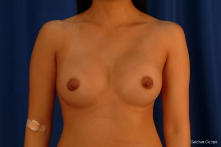 Underarm Breast Augmentation Streeterville, Chicago 2621 - After Image 1