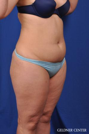 VASER® Lipo: Patient 10 - Before Image 2