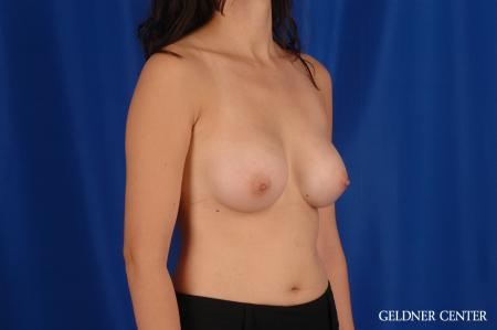 Breast Augmentation: Patient 177 - After Image 2