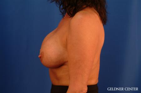 Chicago Breast Lift 2617 - Before Image 4