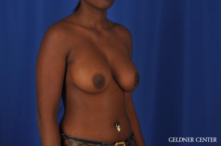 Breast Augmentation Hinsdale, Chicago 4001 -  After Image 3