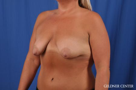 Breast Lift: Patient 41 - Before and After Image 4