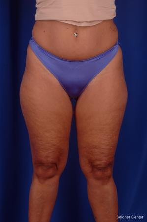 Liposuction: Patient 6 - Before Image