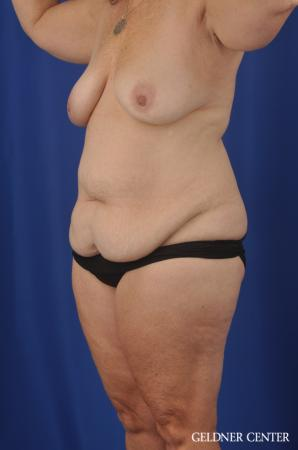 Abdominoplasty Patient 1 before and after photos - Before and After Image 4