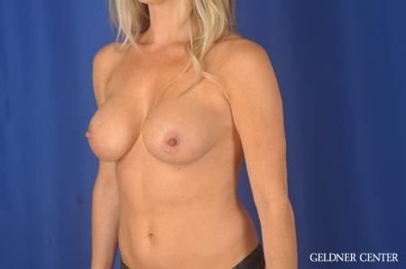 Breast Augmentation Hinsdale, Chicago 11861 -  After Image 4