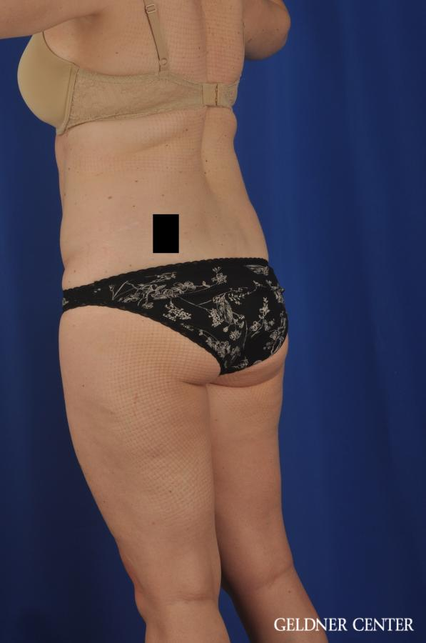 Liposuction: Patient 26 - Before and After Image 5