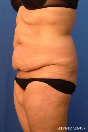 Tummy Tuck: Patient 19 - Before and After Image 4