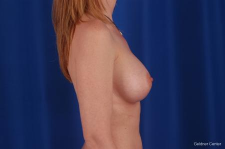 Chicago Breast Augmentation 2634 -  After Image 2
