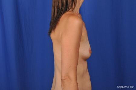 Chicago Breast Augmentation 2376 - Before Image 2