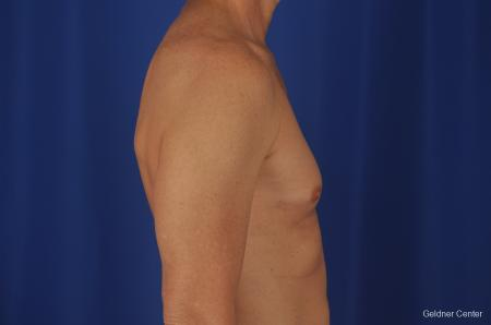 Gynecomastia: Patient 2 - Before Image 3
