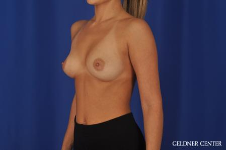 Breast Augmentation: Patient 109 - Before and After Image 4