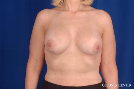 Breast Lift: Patient 50 - After Image 1