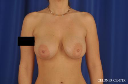 Breast Augmentation: Patient 171 - After Image 1