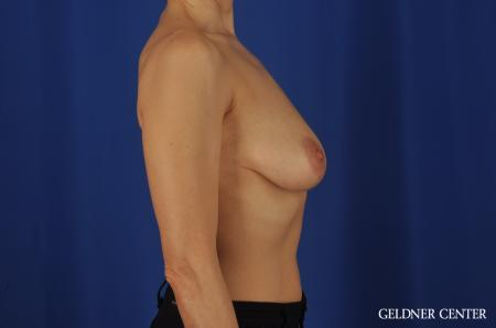 Chicago Breast Augmentation 5475 - Before Image 3