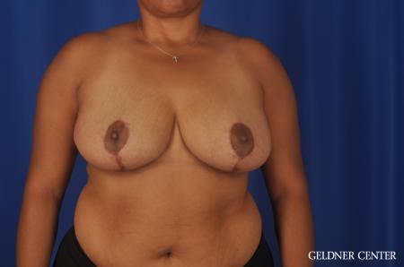 Breast Reduction Lake Shore Dr, Chicago 9099 -  After Image 1