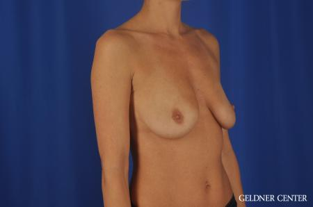 Chicago Breast Augmentation 5476 - Before Image 2