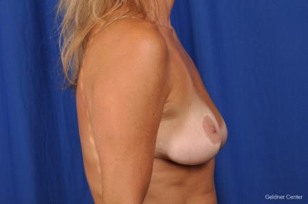 Complex Breast Augmentation Streeterville, Chicago 2392 - Before Image 2
