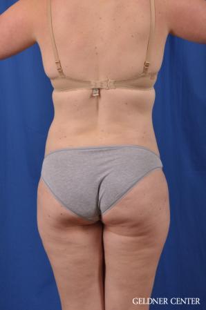 Liposuction: Patient 48 - After 4