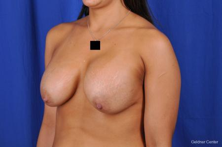 Chicago Breast Lift 2059 - Before and After Image 4