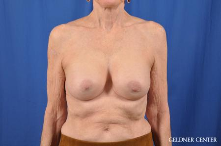 Breast Augmentation: Patient 138 - After Image 1