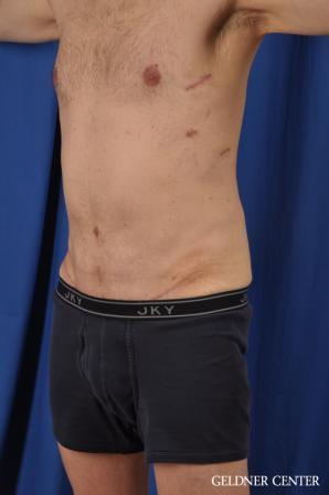 Abdominoplasty For Men: Patient 2 - After Image 4