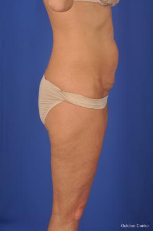 Lipoabdominoplasty: Patient 2 - Before Image 3