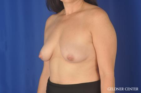 Chicago Breast Lift 11857 - Before and After Image 4