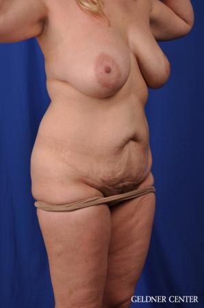 Lipoabdominoplasty: Patient 6 - Before Image 2