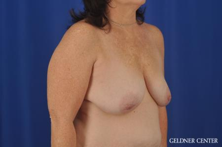 Breast Lift Hinsdale, Chicago 3232 - Before Image 3