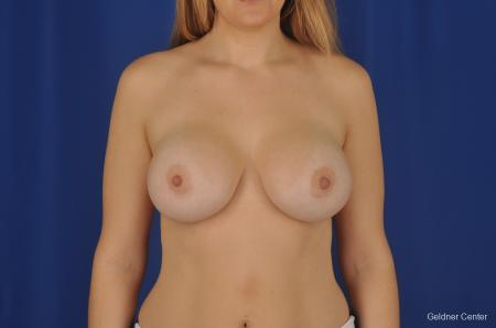 Chicago Breast Augmentation 2374 -  After Image 1