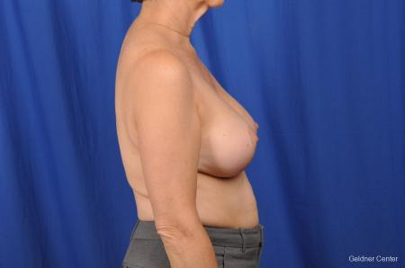 Breast Lift Hinsdale, Chicago 2058 -  After Image 2