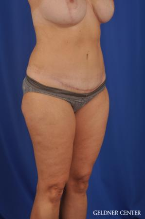 Lipoabdominoplasty: Patient 6 - After Image 2