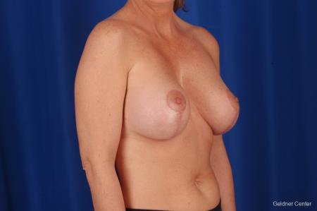 Breast Lift Lake Shore Dr, Chicago 2308 -  After Image 3