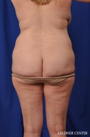 Lipoabdominoplasty: Patient 6 - Before Image 4