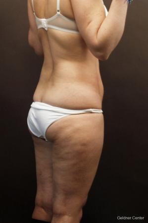 Liposuction: Patient 9 - Before Image 4